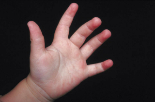 A child's open hand